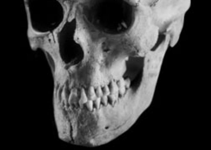 Can You Tell A Persons Race From His Or Her Skull