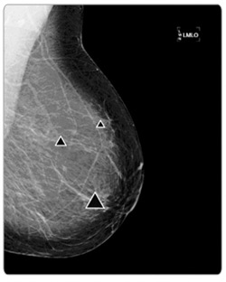 The R2 ImageChecker CAD pinpoints areas of concern on a mammogram.