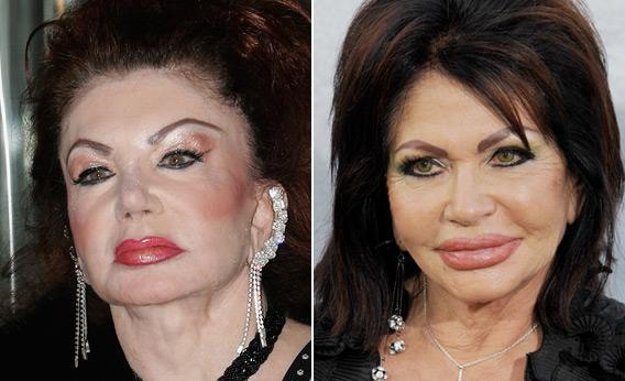 Jackie Stallone and Ivone Weldon.
