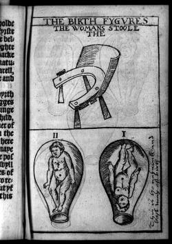 "Woman's stool (birthing chair), fetus in uterus, feet down, and fetus in uterus, head down, latter marked ""This is the naturall (sic) and best way of birth""."