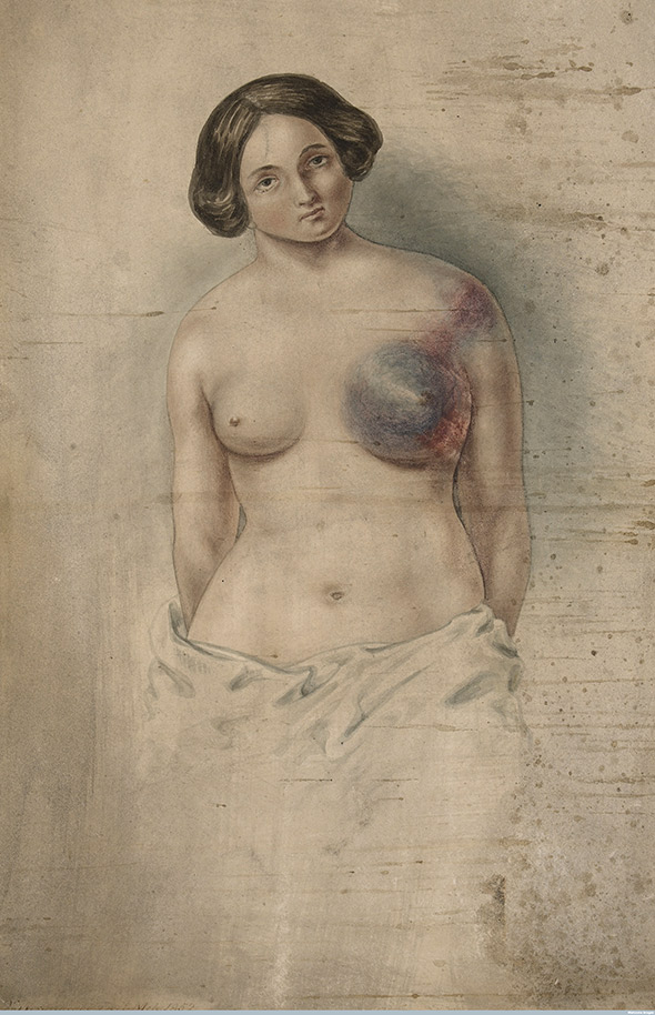 Woman suffering from cancer of the left breast. Watercolor by John Guise Westmacott, 1852.
