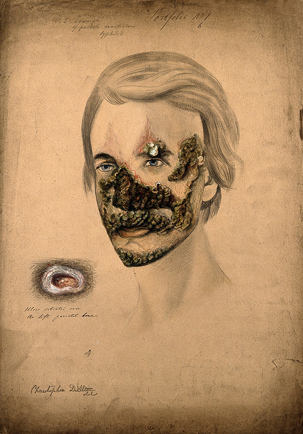 Syphilis sufferer with severe pustule crustaceous lesions. Pencil, white chalk, and watercolor drawing by Christopher D'Alton, 1855.