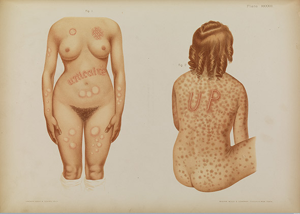 Patient treated for the skin disease urticaria. Plate by Prince A. Morrow, in the Atlas of Skin and Venereal Diseases, 1889.