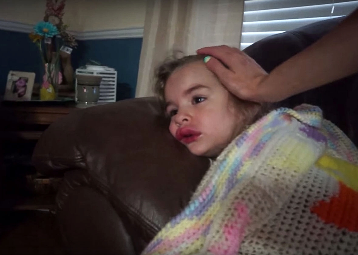 Daughter Symphony, after she was stung by a wasp, on her lip, for the first time.
